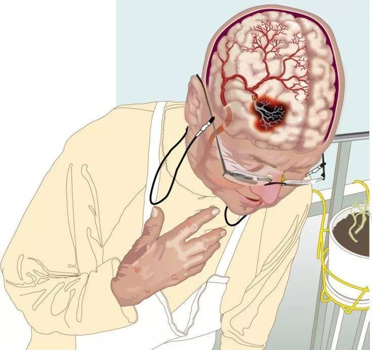 Индивидуальная реабилитация пациентов, перенесших инсульт
